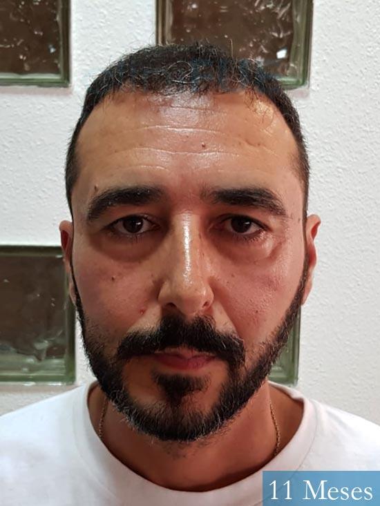 Jordi 41 años injerto capilar turquia segunda operacion antes