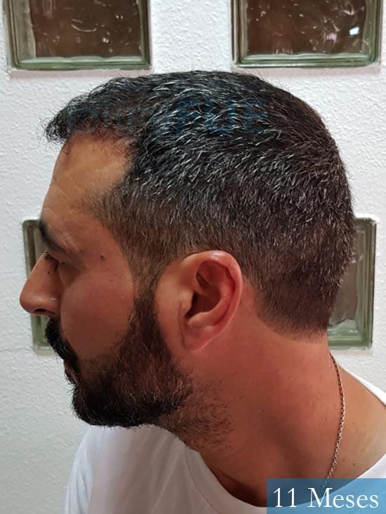 Jordi 41 años injerto capilar turquia segunda operacion antes 3