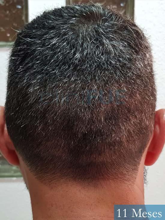 Jordi 41 años injerto capilar turquia segunda operacion antes 4