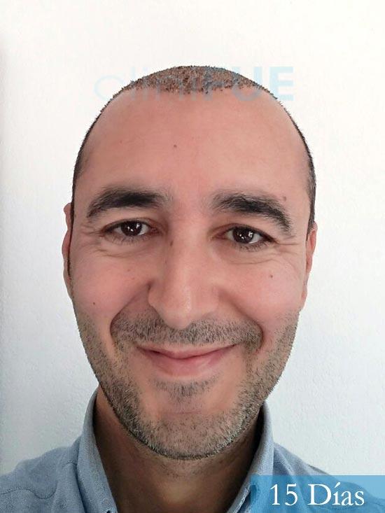 Jordi 41 años injerto capilar turquia primera operacion 15 dias