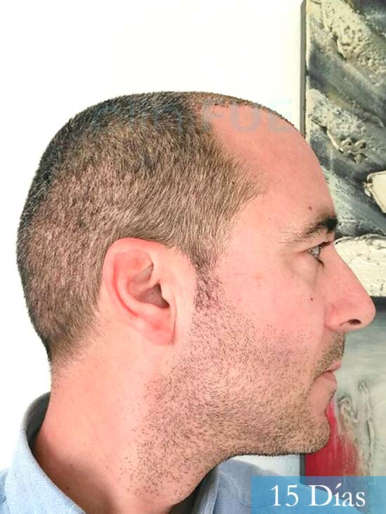 Jordi 41 años injerto capilar turquia primera operacion 7 dias 3