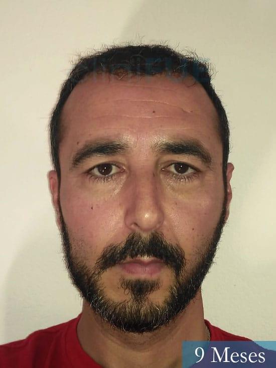 Jordi 41 años injerto capilar turquia primera operacion 9 mes