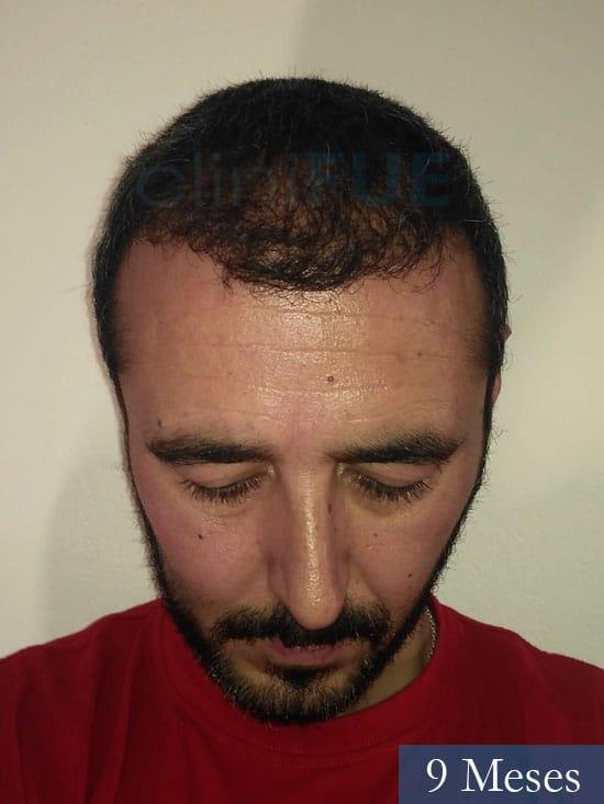 Jordi 41 años injerto capilar turquia primera operacion 9 mes 2