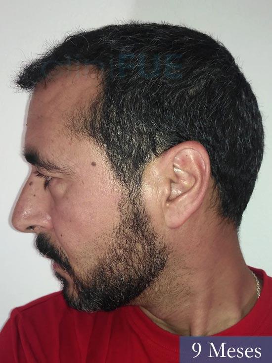 Jordi 41 años injerto capilar turquia primera operacion 9 mes 4