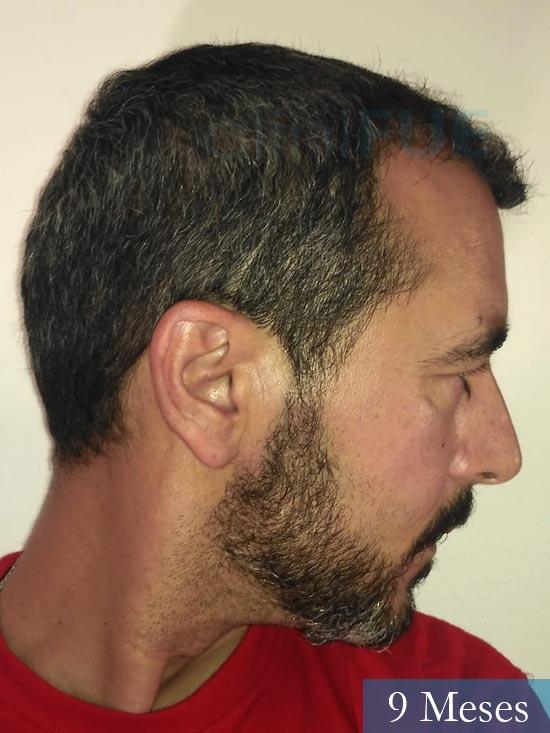 Jordi 41 años injerto capilar turquia primera operacion 9 mes 3