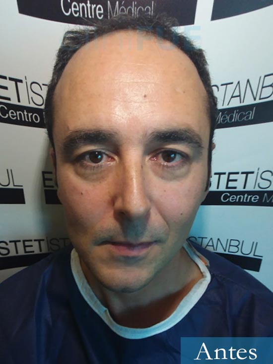 Jordi 41 años injerto capilar turquia primera operacion dia operacion antes