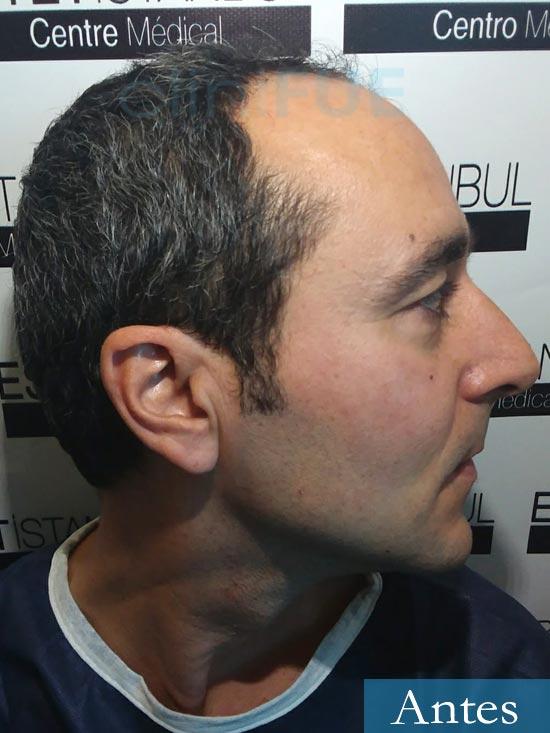 Jordi 41 años injerto capilar turquia primera operacion dia operacion antes 3