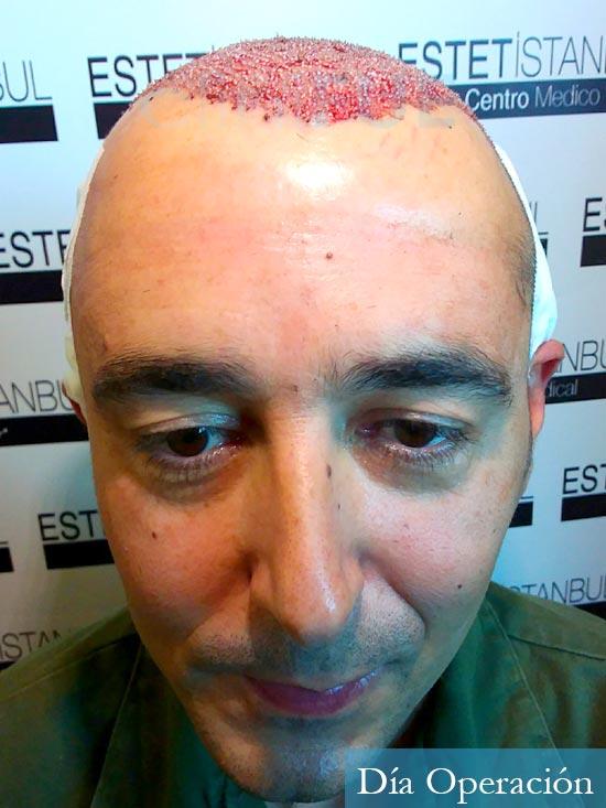 Jordi 41 años injerto capilar turquia primera operacion dia operacion 1