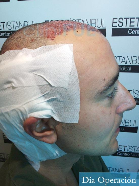 Jordi 41 años injerto capilar turquia primera operacion dia operacion 3