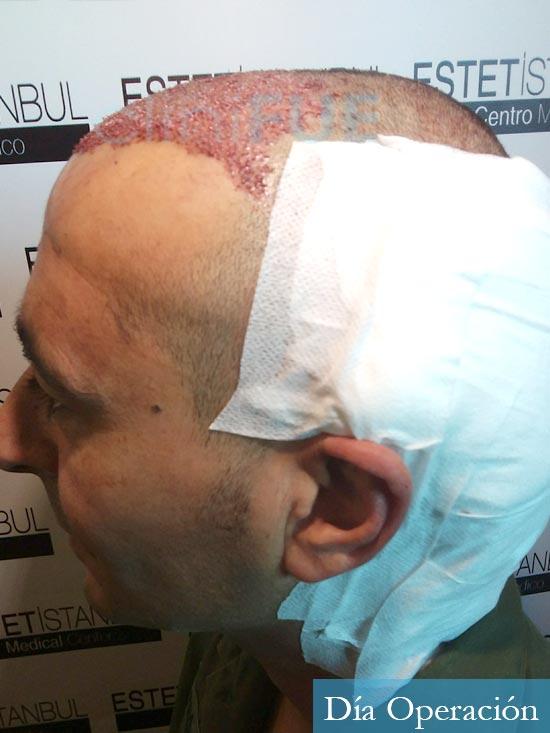Jordi 41 años injerto capilar turquia primera operacion dia operacion 4
