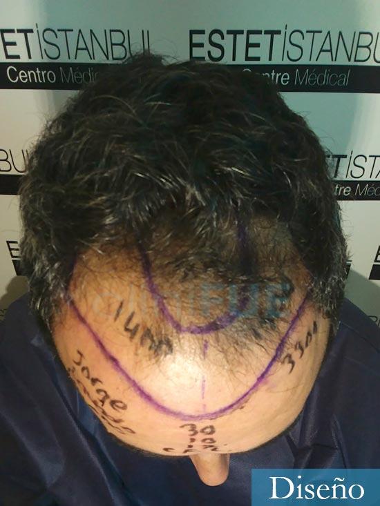 Jordi 41 años injerto capilar turquia primera operacion dia operacion 7