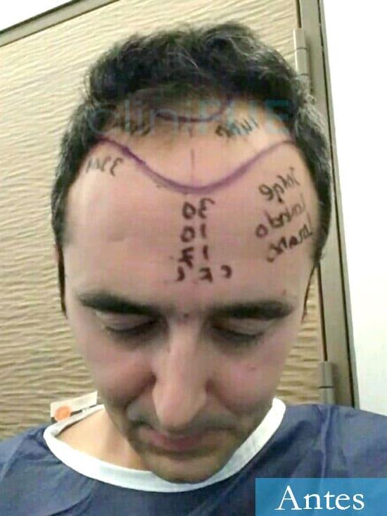 Jordi 41 años injerto capilar turquia primera operacion dia operacion 6