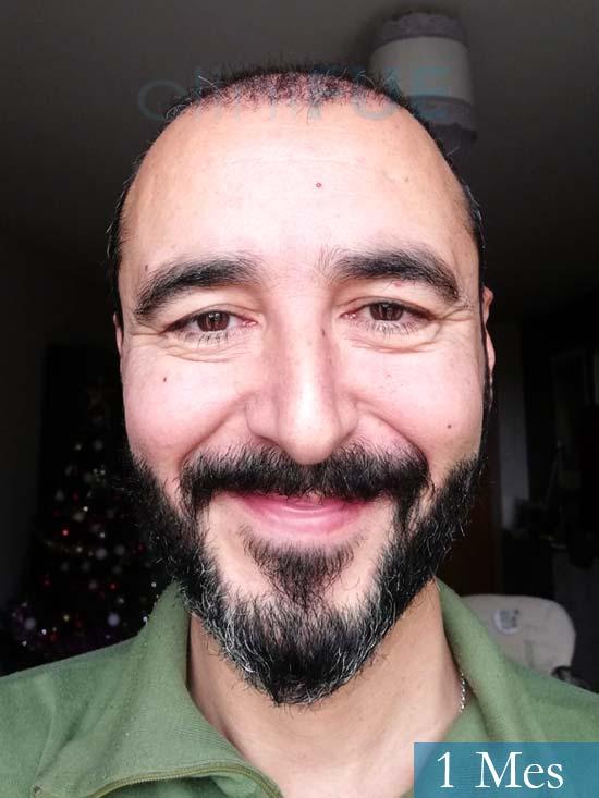 Jordi 41 años injerto capilar turquia segunda operacion 1 mes