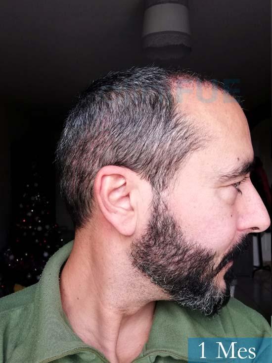 Jordi 41 años injerto capilar turquia segunda operacion 1 mes 3