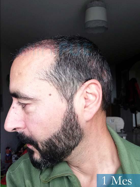 Juan Antonio 36 Mallorca trasplante turquia segunda operacion 3 meses 4Jordi 41 años injerto capilar turquia segunda operacion 1 mes 4