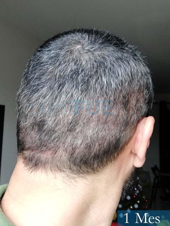 Jordi 41 años injerto capilar turquia segunda operacion 1 mes 5