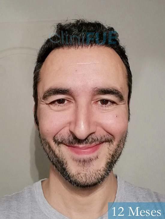 Jordi 41 años injerto capilar turquia segunda operacion 12 meses