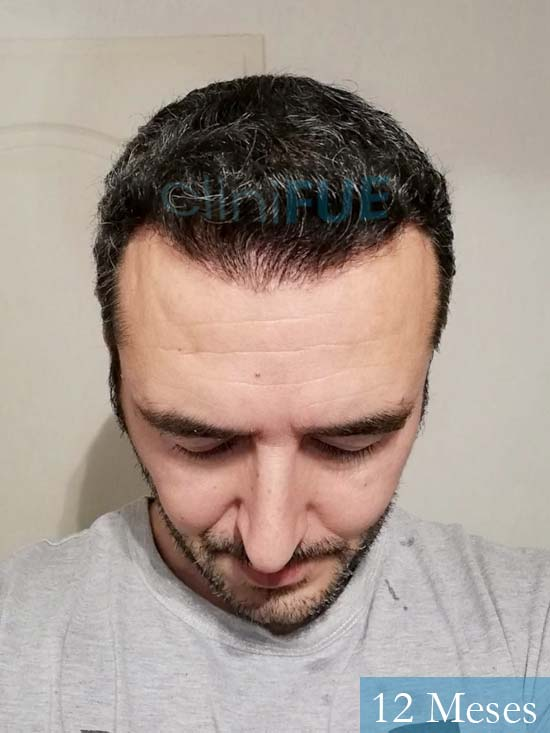 Jordi 41 años injerto capilar turquia segunda operacion 12 meses 2