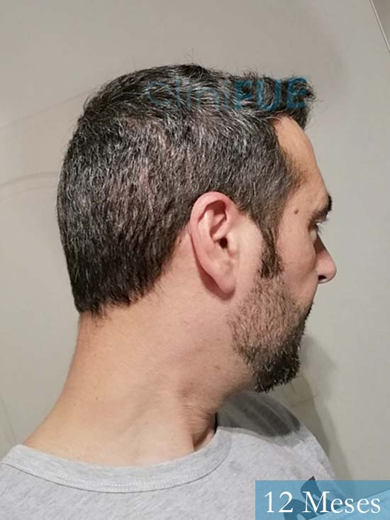 Jordi 41 años injerto capilar turquia segunda operacion 12 meses 3