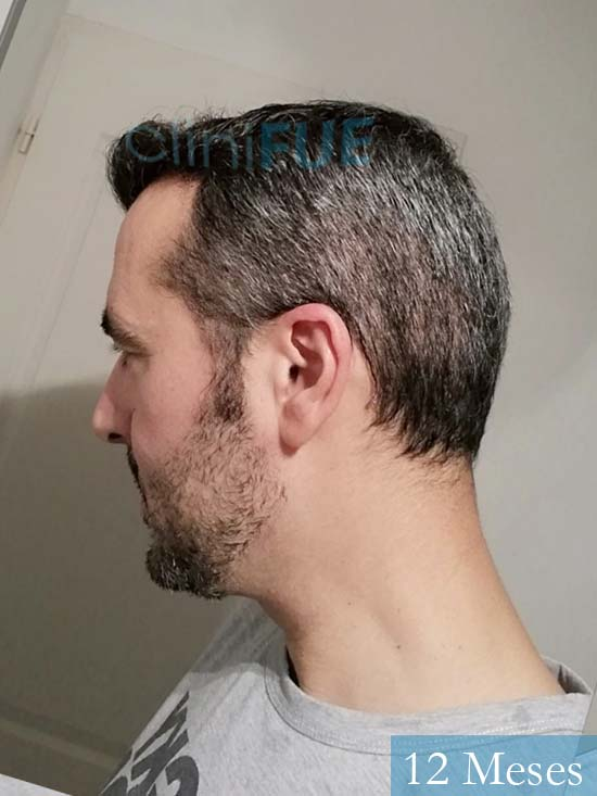 Jordi 41 años injerto capilar turquia segunda operacion 12 meses 4