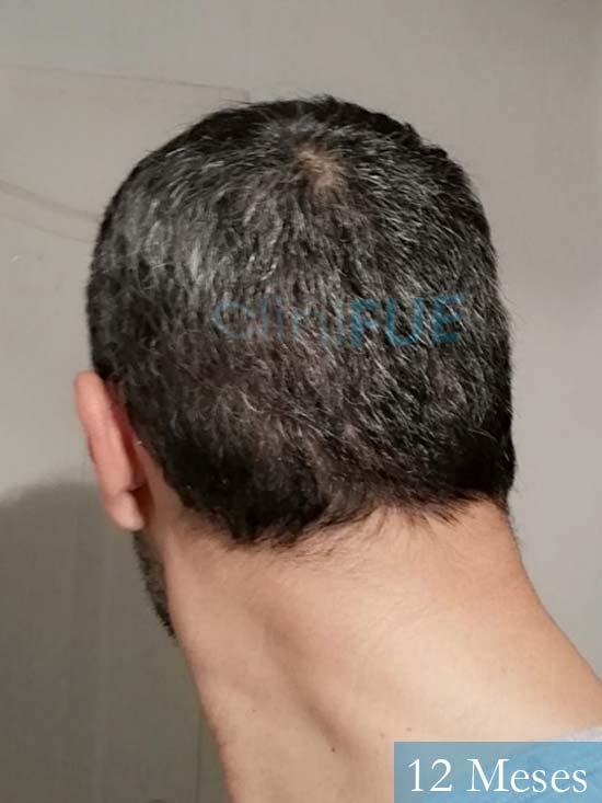 Jordi 41 años injerto capilar turquia segunda operacion 12 meses 5