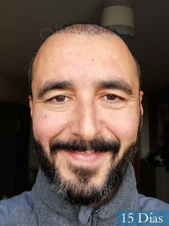 Jordi 41 años injerto capilar turquia segunda operacion 15 dias