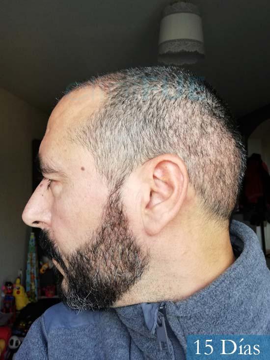 Jordi 41 años injerto capilar turquia segunda operacion 15 dias 4