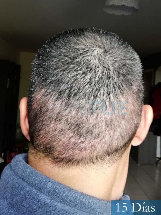 Jordi 41 años injerto capilar turquia segunda operacion 15 dias 5
