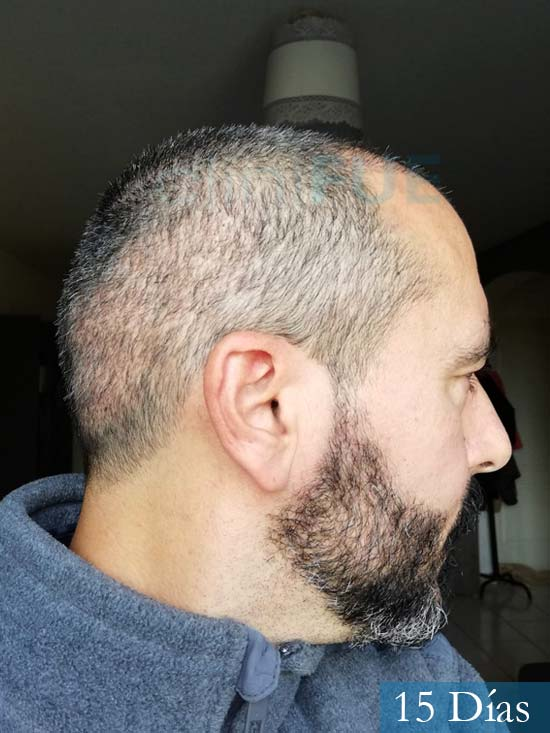 Jordi 41 años injerto capilar turquia segunda operacion 15 dias 3