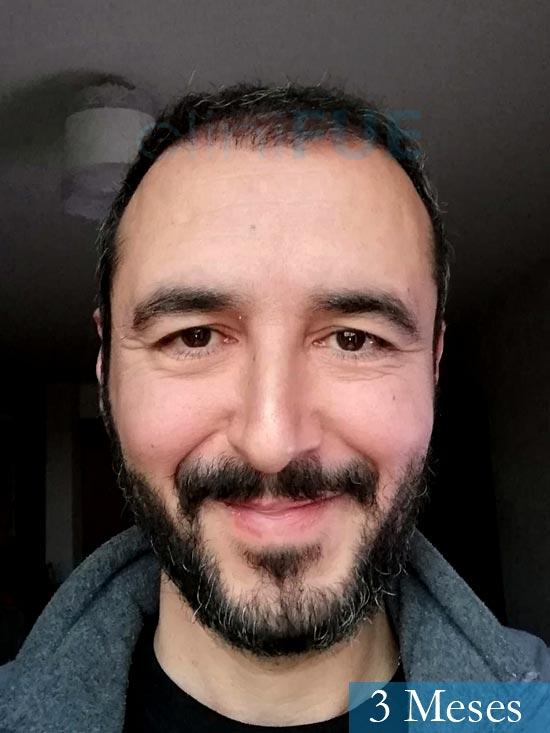 Jordi 41 años injerto capilar turquia segunda operacion 3 meses