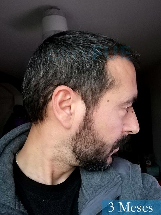 Jordi 41 años injerto capilar turquia segunda operacion 3 meses 3