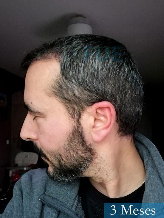 Jordi 41 años injerto capilar turquia segunda operacion 3 meses 4