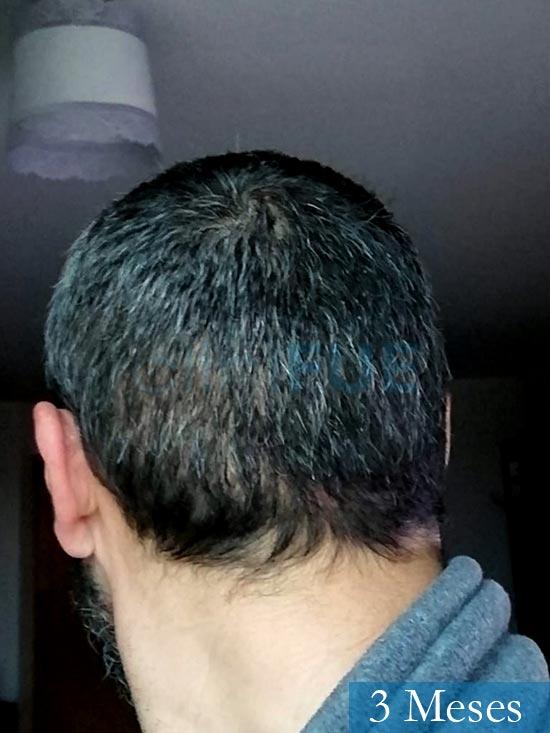 Jordi 41 años injerto capilar turquia segunda operacion 3 meses 5