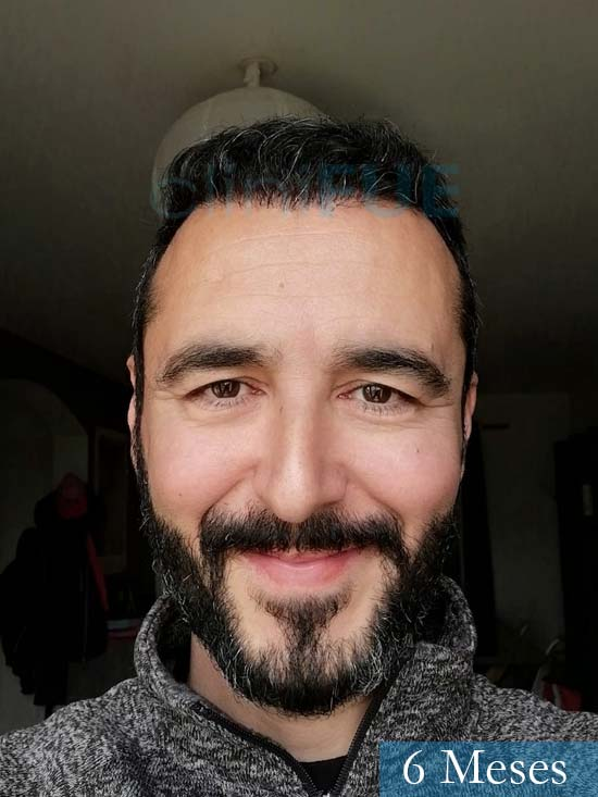 Jordi 41 años injerto capilar turquia segunda operacion 6 meses