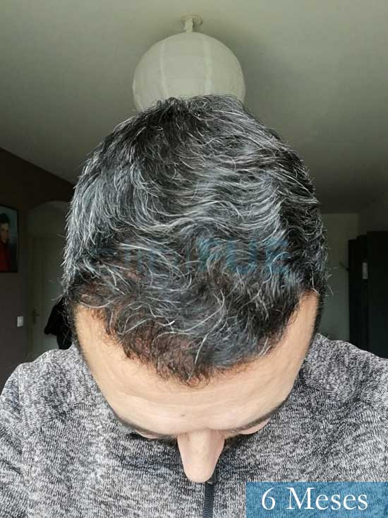 Jordi 41 años injerto capilar turquia segunda operacion 6 meses 3
