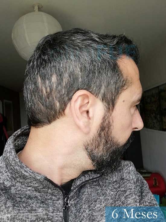 Jordi 41 años injerto capilar turquia segunda operacion 6 meses 4