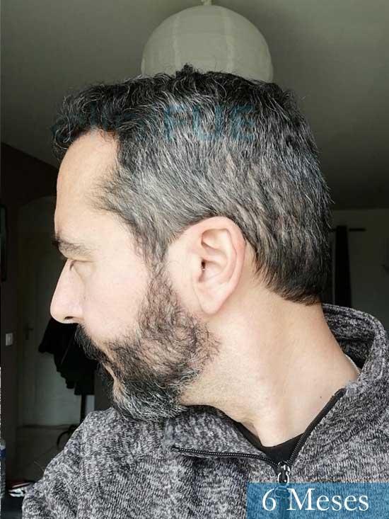 Jordi 41 años injerto capilar turquia segunda operacion 6 meses 5