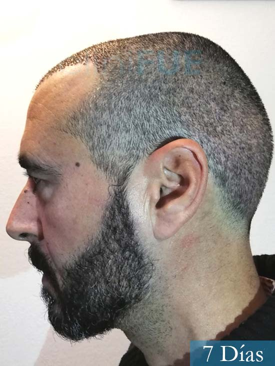 Jordi 41 años injerto capilar turquia segunda operacion 7 dias