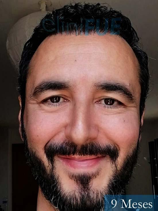 Jordi 41 años injerto capilar turquia segunda operacion 9 meses