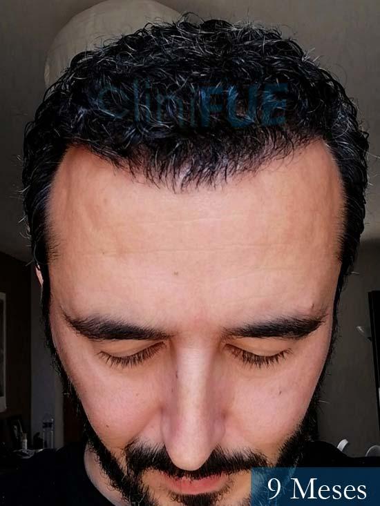 Jordi 41 años injerto capilar turquia segunda operacion 9 meses 2