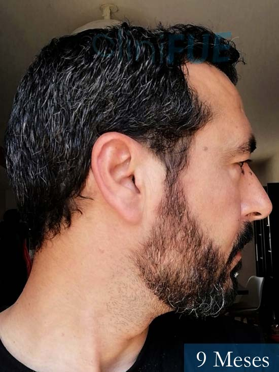 Jordi 41 años injerto capilar turquia segunda operacion 9 meses 4