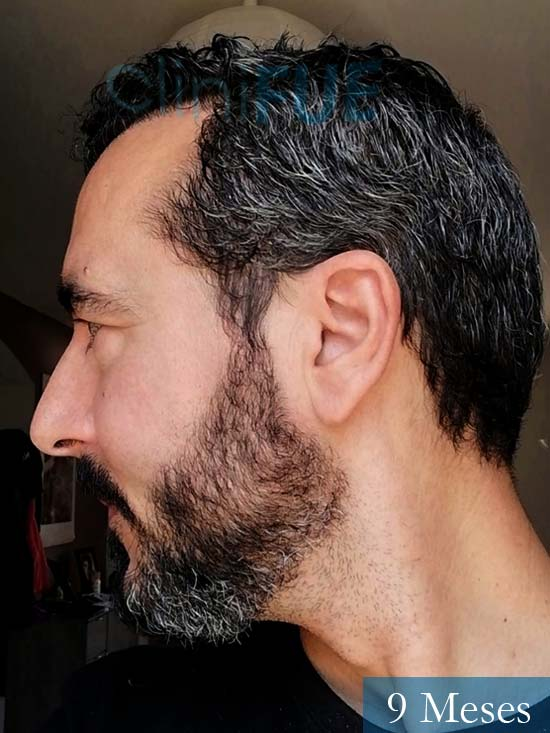 Jordi 41 años injerto capilar turquia segunda operacion 9 meses 5