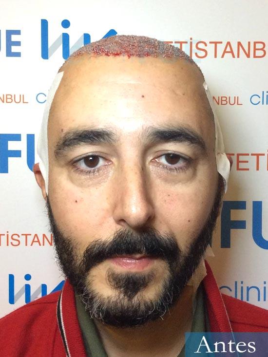 Jordi 41 años injerto capilar turquia segunda operacion dia operacion