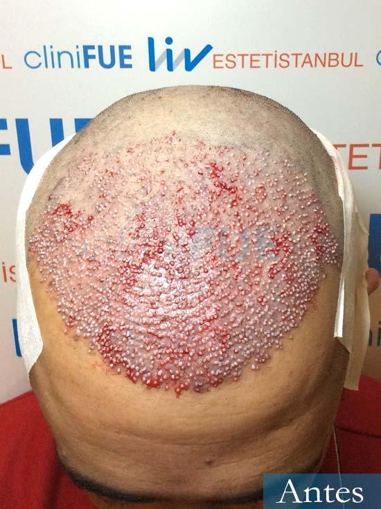 Jordi 41 años injerto capilar turquia segunda operacion dia operacion 2
