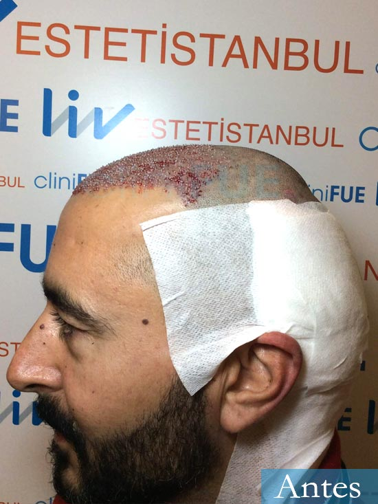 Jordi 41 años injerto capilar turquia segunda operacion dia operacion 3