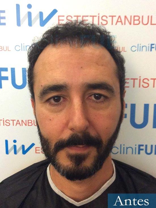 Jordi 41 años injerto capilar turquia segunda operacion dia operacion antes