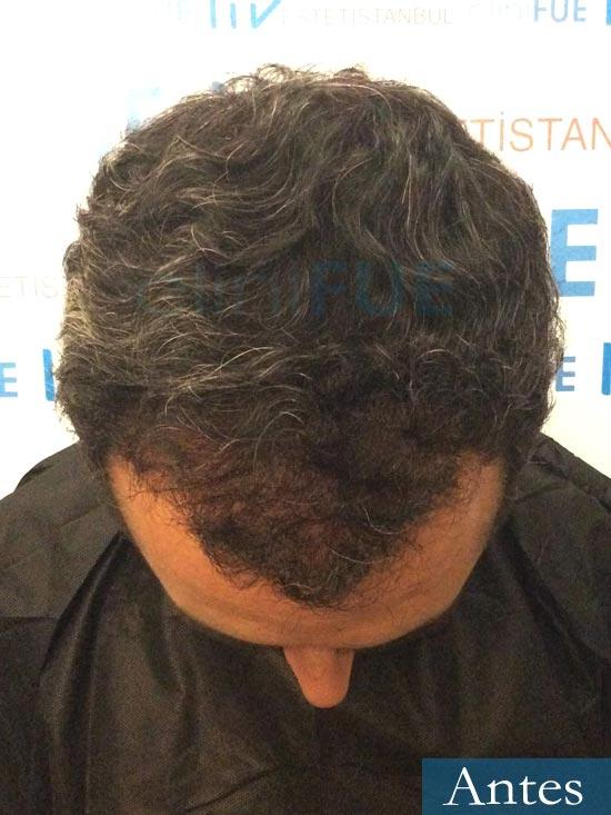 Jordi 41 años injerto capilar turquia segunda operacion dia operacion antes 2