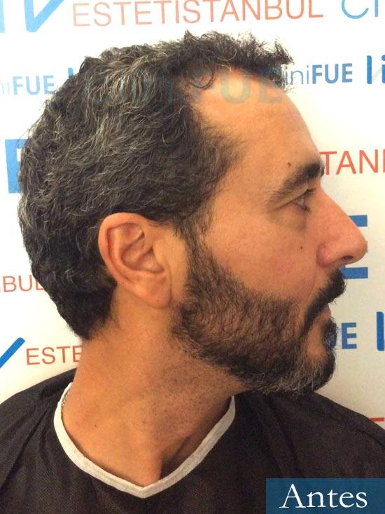 Jordi 41 años injerto capilar turquia segunda operacion dia operacion antes 3