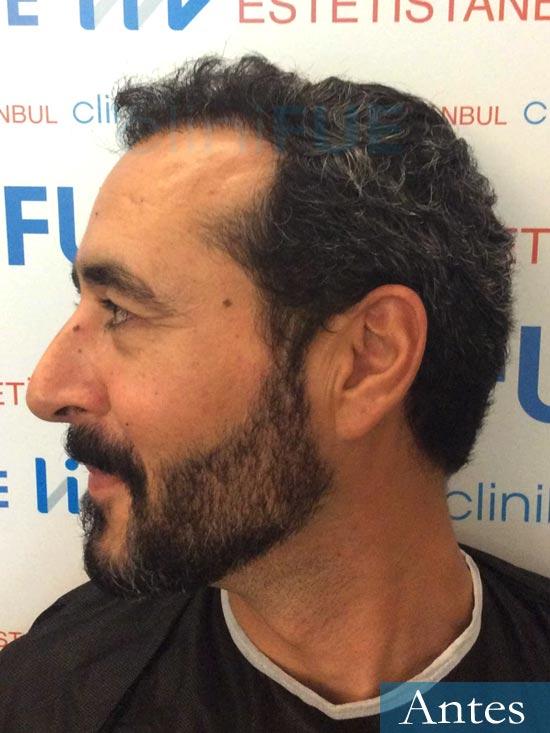 Jordi 41 años injerto capilar turquia segunda operacion dia operacion antes 4