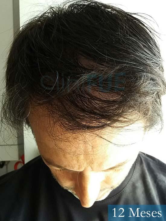 Jose Luis 49 Madrid trasplante capilar turquia 12 meses 2